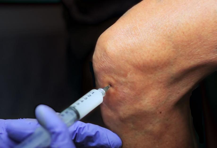 TSK-Orthopedic-needles-small-1